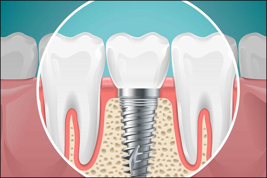 あなたはあなたの歯科用合金をどれくらいよく知っていますか?