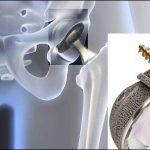 医療製品のためのCNC加工のトップ7の利点